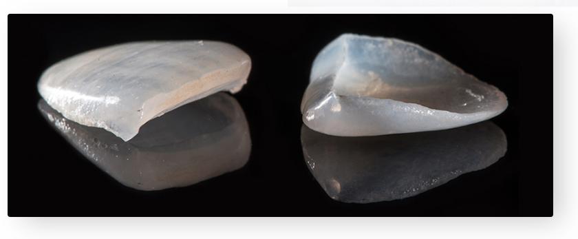 zubne ljuskice02-slowage365
