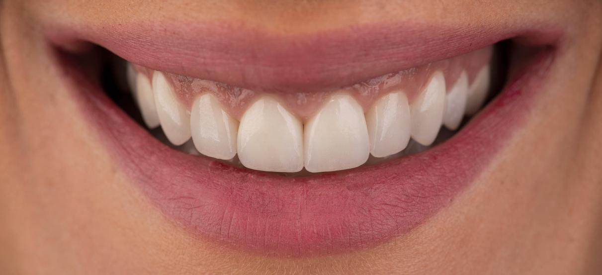 ljuskice za zube05-slowage365